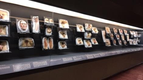 medical museum1.JPG